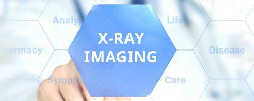 XRAY IMAGING NEW