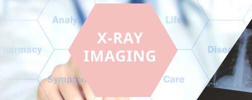 XRAY IMAGING roze